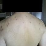 Lesioni strofuloidi multiple sulla schiena di un soggetto