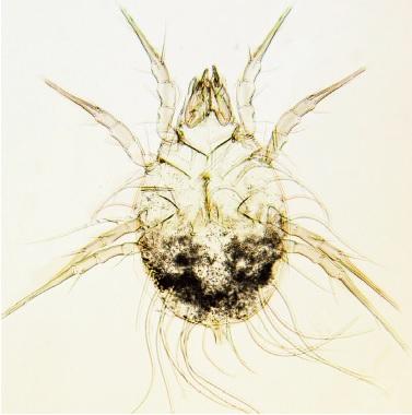 Glycyphagus domesticus - femmina - foto di Mario Principato