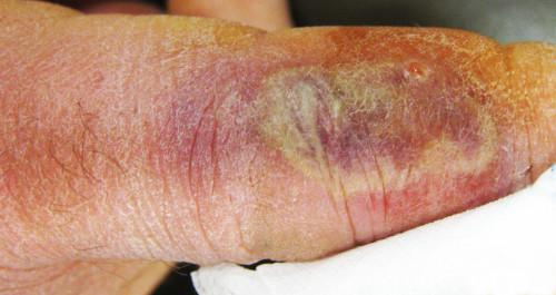 Morso di Loxosceles rufescens - lesione eritemato-flittenulare a contenuto siero-ematico, tipica della forma cutaneo-necrotica - foto Prof.Mario Principato